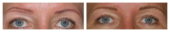 Corrective Eyebrows