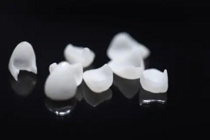 getting dental veneers
