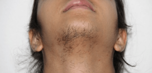 Agree, the chin whiskers facial hair