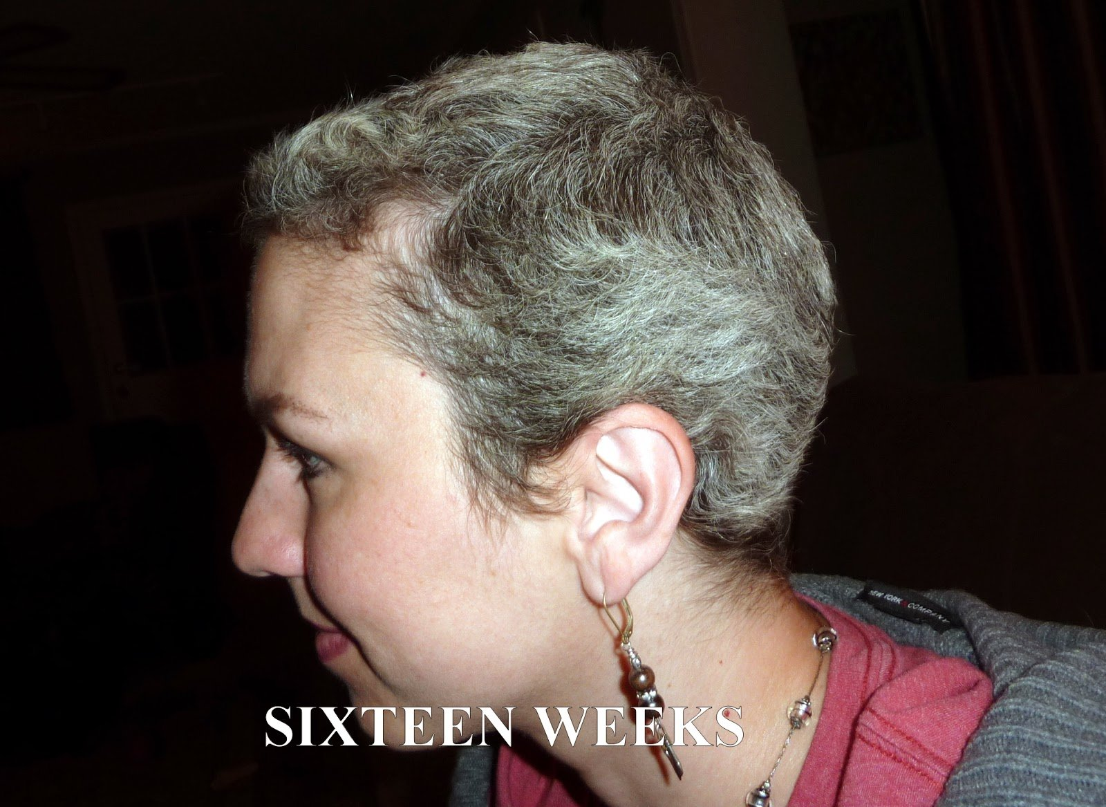 New Anncredible Hair Growth Progression After Chemo Six Ideas With Pictures