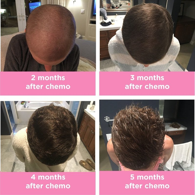 New 5 Months After Chemo Hair Progression Crunchy Girl Gets Ideas With Pictures