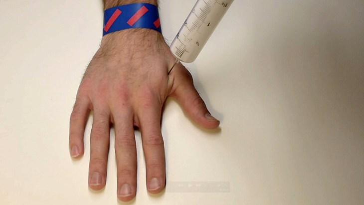 hand with needle poking it