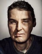 リチャード・ノリス顔面移植した人生奇跡の回復!手術後の画像あり【世界仰天ニュース】
