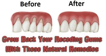 Grow back your receding gums