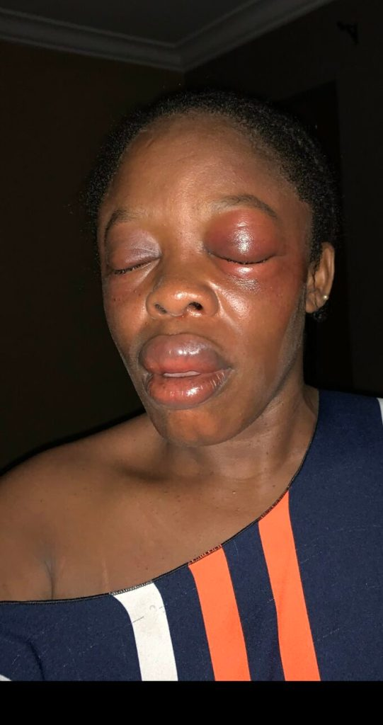 Teacher lucky to be alive after she encountered one-chance operators in Lagos state (photos)