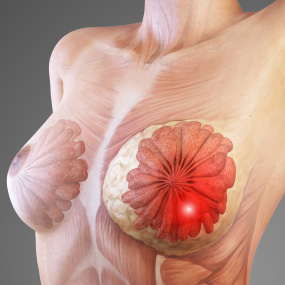 Picture of female breast. Area of where most Breast Cancers are found. This can occur in both males and females.