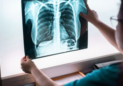 A Sigh Of Relief After Lung Cancer Screening Has Doubled