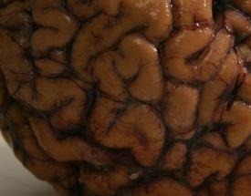 Brain waste management