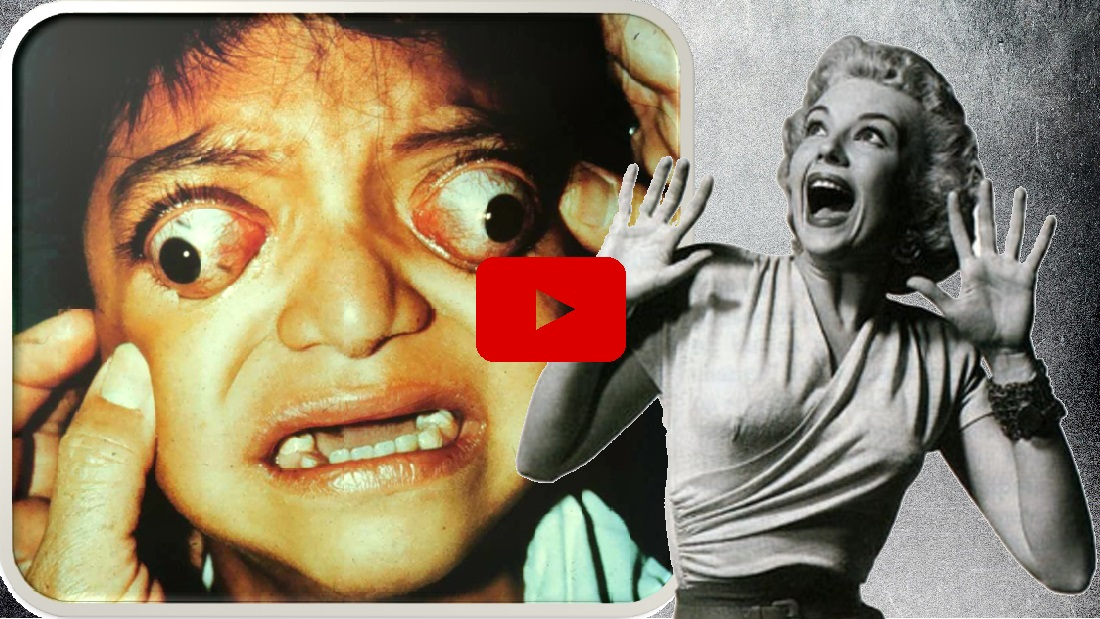 10 Most Horrifying/Grossest Body Growths found on Humans [Video]