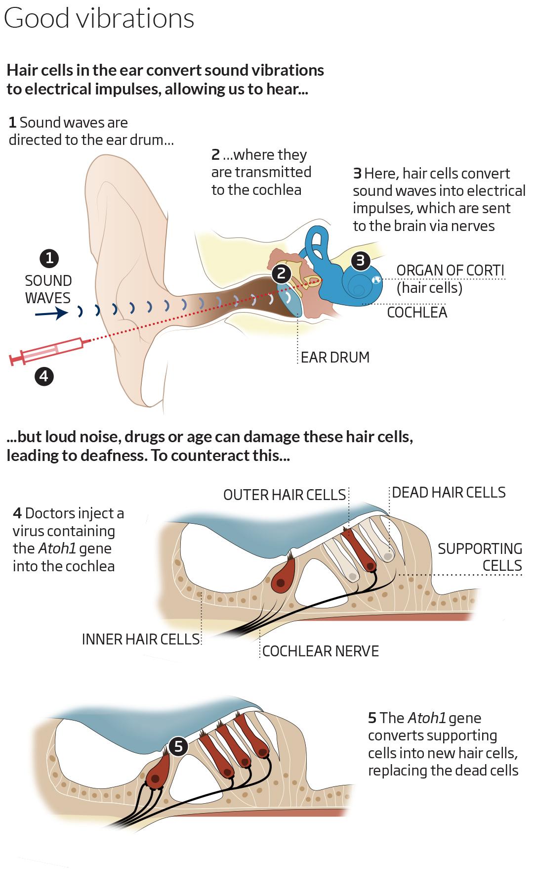 Hearing Nerve Regeneration