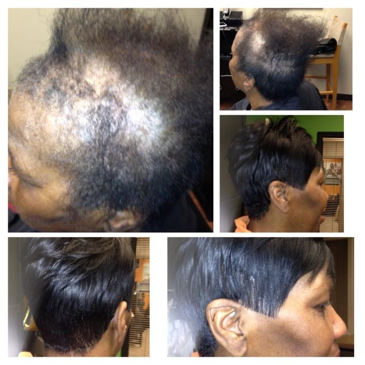 Full Custom Sewin 'no Glue' Natural Looking Sewin Thinning Hair pertaining to Short Haircuts For Women With Hair Loss