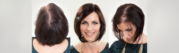 Hair Loss In Women - Transitions Hair inside Woman Hair Falling Out Haircut Style