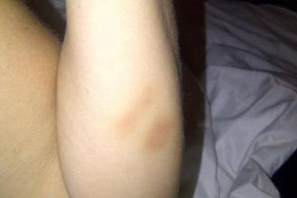 Two fingerprint-sized bruises appeared on Valeria Atchison's arm following the tour