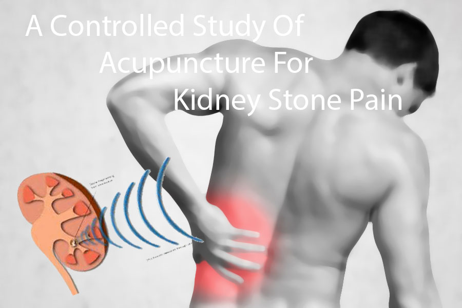 Acupuncture Better Than Pain Medicine For Pain?