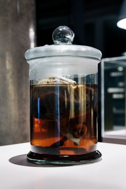 A human placenta from 'Stem Cell Transplantation' by Shaun McCann as part of BLOOD at Science Gallery at Trinity College Dublin 2.jpg