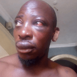 Nigerian gospel artist survives ritualist attack (photos)