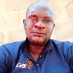 IBEDC Staff in Ogun State Was Badly Beaten by Angry Youth While Distributing Electricity bills