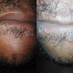 """""""After Sucking, This is what i got"""" – Nigerian Man Shares Photos of what happen to him After Performing Oral Sex On a Woman"""