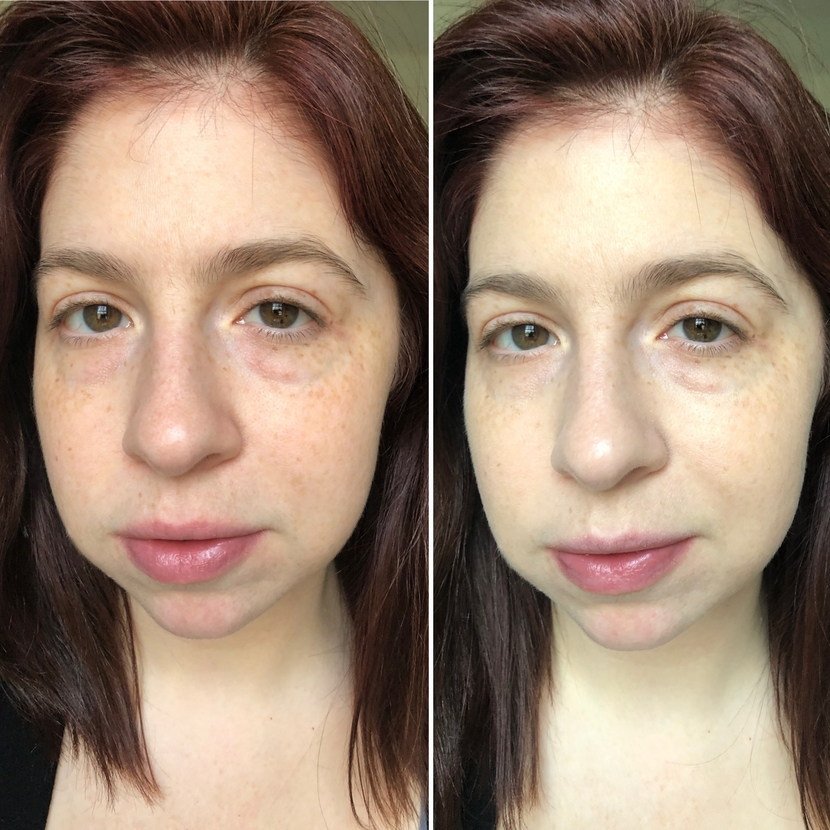 Left: bare-faced with no makeup. Right: with one layer of Ilia Super Serum Skin Tint in the shade Tulum