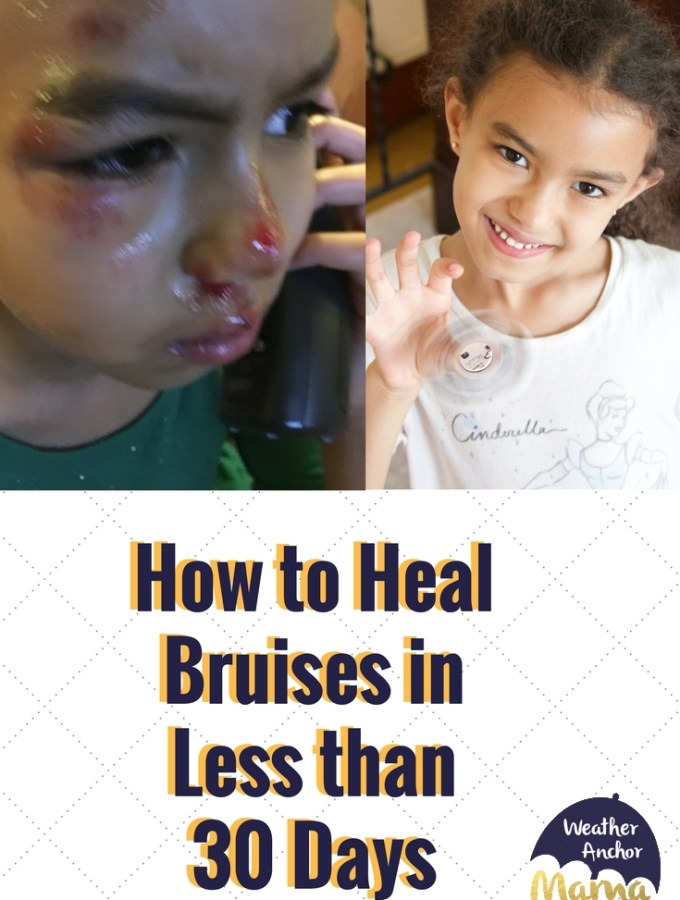 How to Heal Bruises in Less than 30 Days