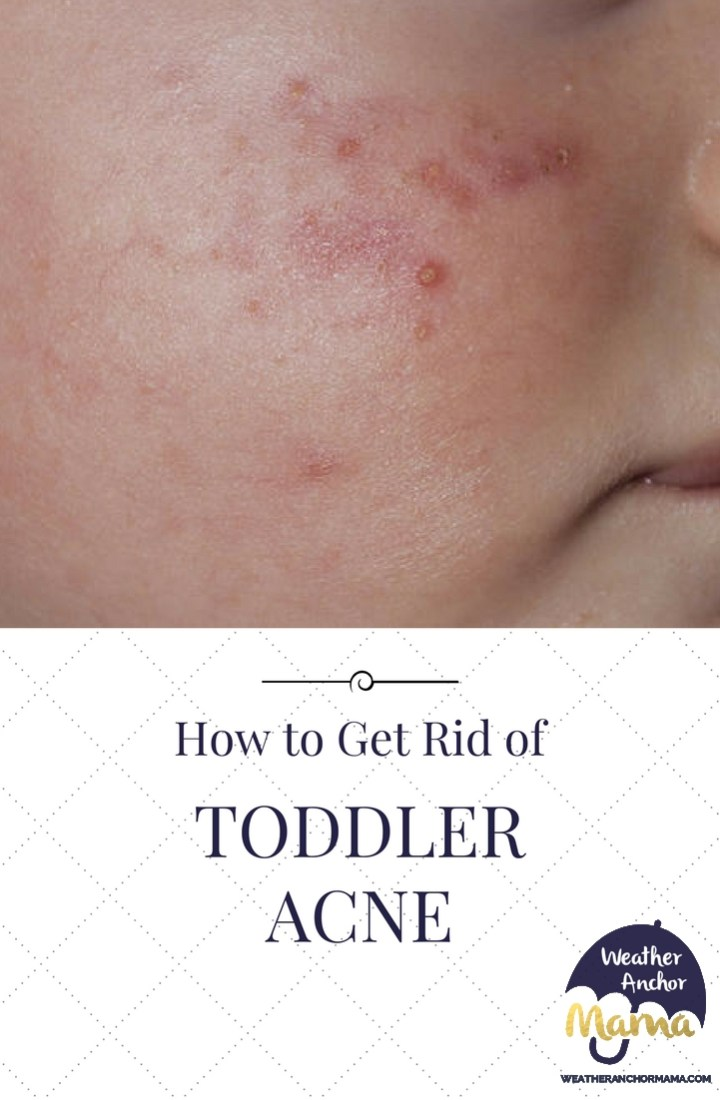 toddler acne baby acne curly hair products that cause acne