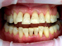 Quality Dental Veneers Crowns