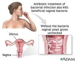 prevent yeast infection