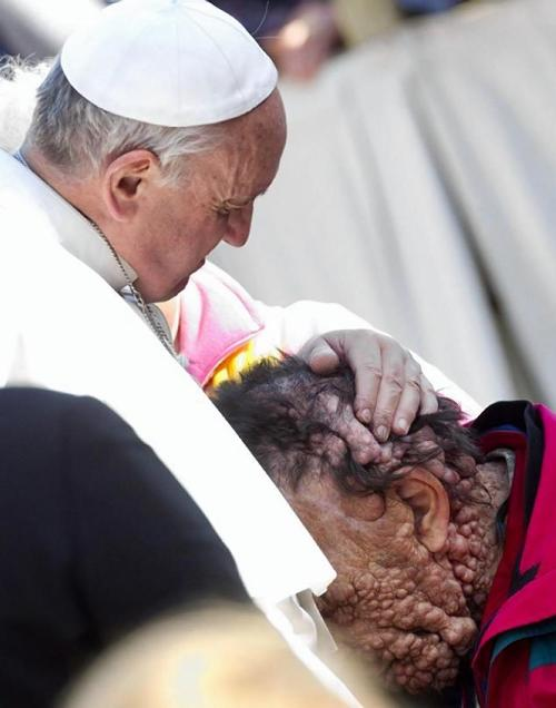 3. Pope Francis hugging this man with several tumors on his face.
