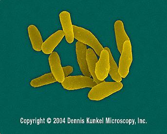 corynebacterium-diptheriae