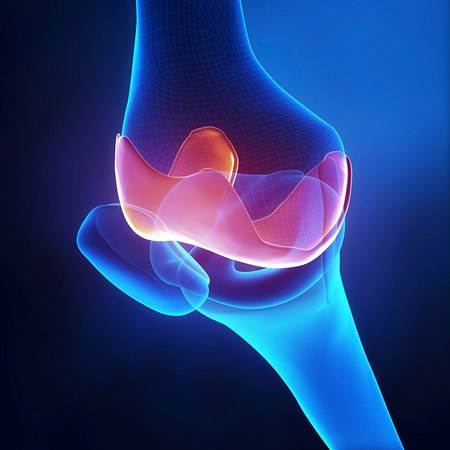 Desarrollan biomateriales para mejorar terapias contra la osteoartritis - osteoartritis