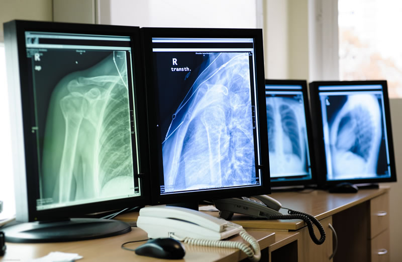"""Mexicano diseña software que """"entrena"""" a médicos que interpretan radiografías - Software-interpretar-radiografias"""