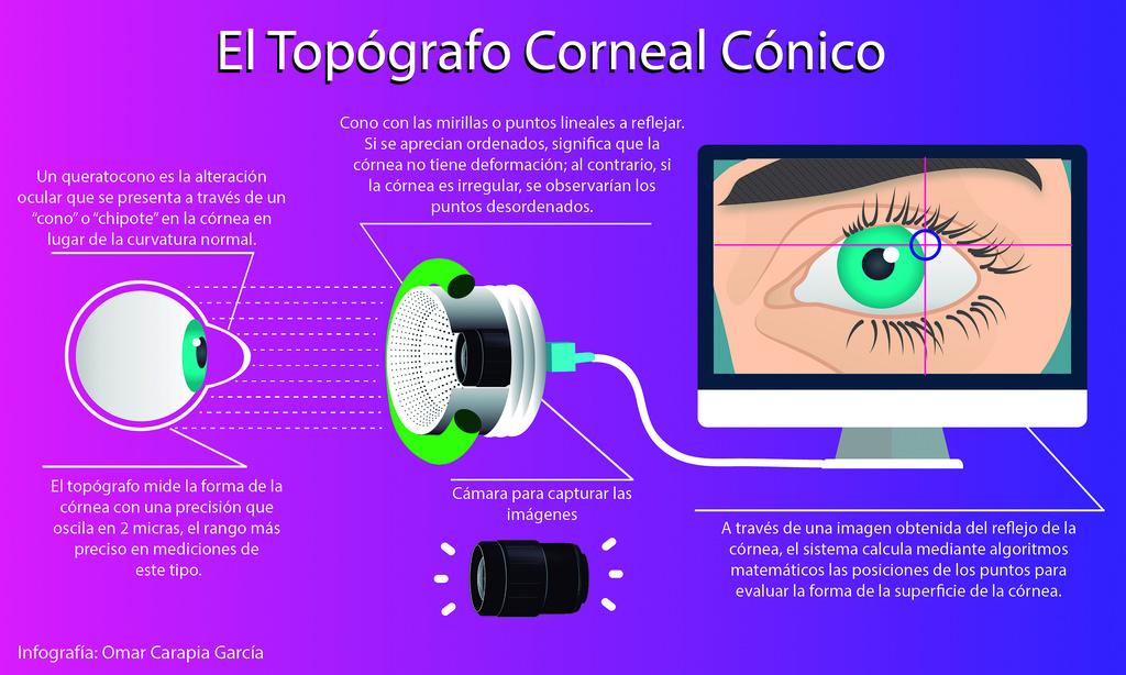Creó investigador mexicano un topógrafo corneal de alta competitividad - topografo-corneal-conico-1
