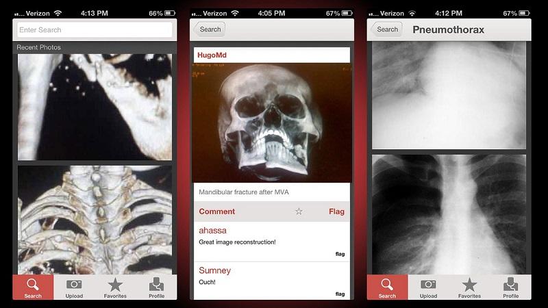"""Figure 1, el """"Instagram para médicos"""", ya está disponible en español - figure1-app-800x450"""