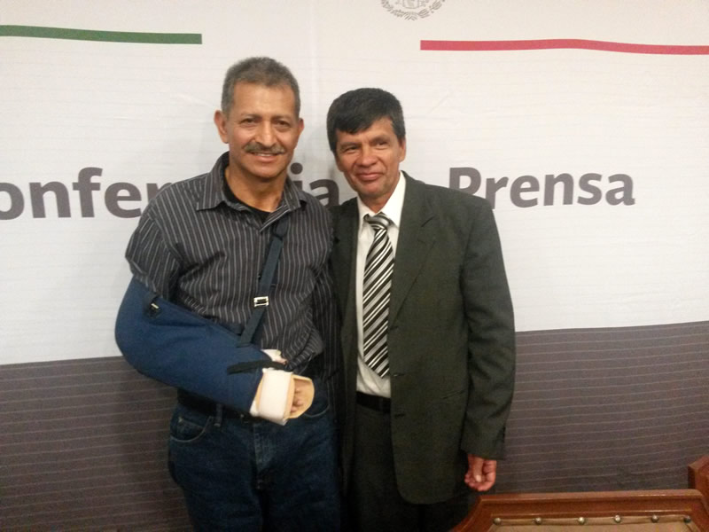 Se realizó en México el trasplante de brazo más grande del mundo - transplante-de-brazo-mas-grande-del-mundo