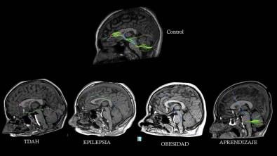 Encuentra respuesta científica al por qué los niños aún tienen ganas de seguir comiendo - ciencia-circuitos-neurologicos