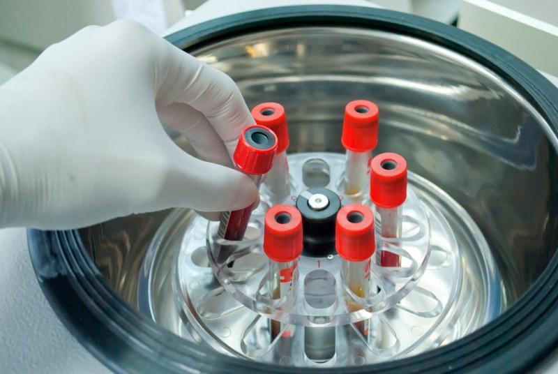 Científico mexicano desarrolla biosensor electroquímico para detectar cáncer - cientifico-mexicano-desarrolla-sensor-electroquimico-para-detectar-cancer-800x536