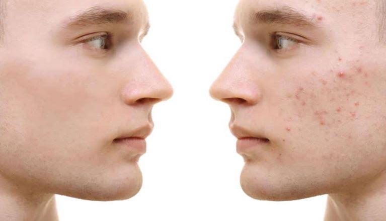 ¡Que tu rostro no quede marcado por el acné! 3 recomendaciones que sanarán tu piel! - acne