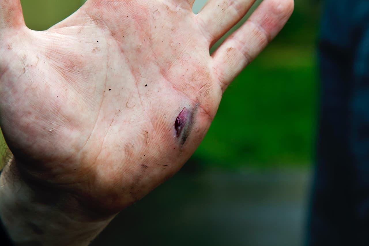 Wunde in der Hand