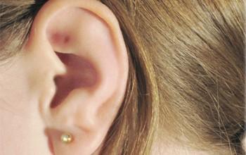Эзотерика родинка на мочке уха что означает. О чем способна рассказать родинка на ухе — приметы