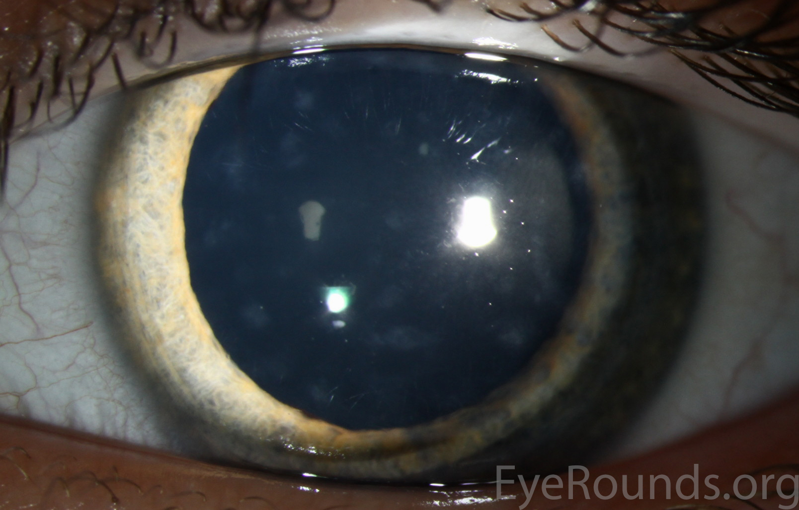 Posterior Polymorphous Corneal Dystrophy Ppmd