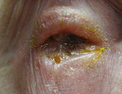 Ocular Cicatricial Pemphigoid Atypical Presentation