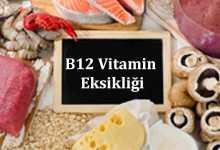 B12-Vitamin eksikliği