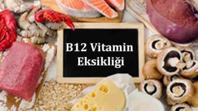 Photo of B12 Vitamin Eksikliği Nedir, Nedenleri, Belirtileri ve dahası