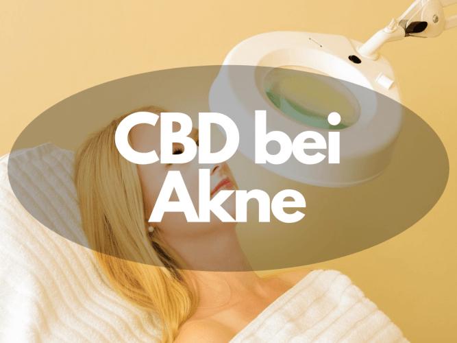 Cannabis CBD bei Akne einsetzen für klare Haut