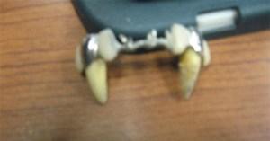 mad_dentistE