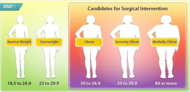 Candidates For Bariatric Surgery Illustration At The Weight Loss Surgery Center Of Los Angeles