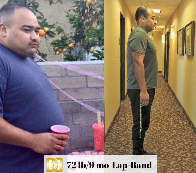Lap Band Espanol | Pages | The Weight Loss Surgery Center Of Los Angeles | Dr. David Davtyan