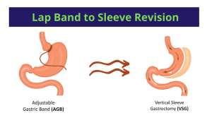 Conditions to qualify for a Lap Band Revision