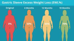 How fast do you lose weight after gastric sleeve procedure