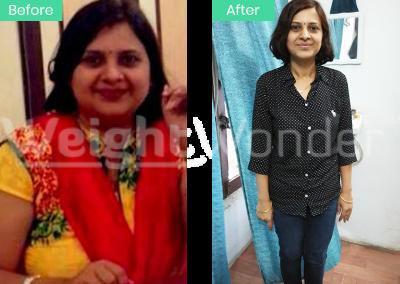 Anju Singh (Lost 17kgs)